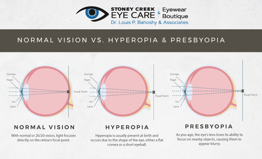diagram comparing normal vision to hyperopia and presbyopia