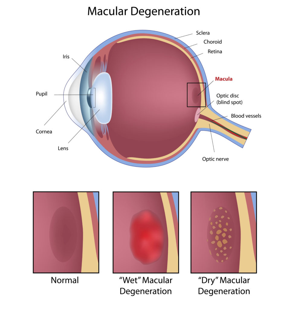 Diagram comparing a healthy macula with wet AMD and dry AMD