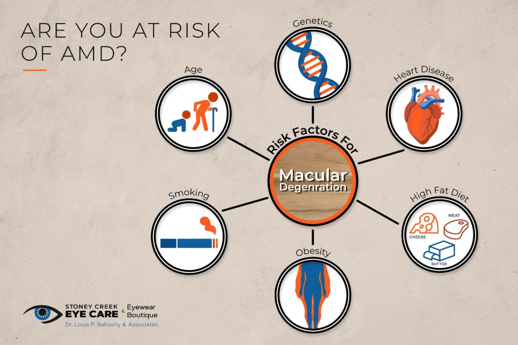 A diagram showing the risk factors of developing age-related macular degeneration or AMD