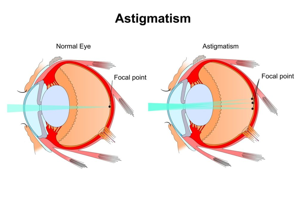 Diagram showing how astigmatism affects the focal point on the eye
