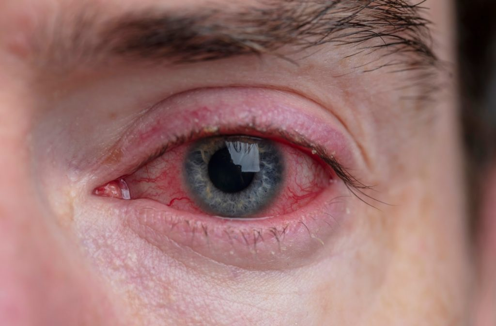 Man with blepharitis in his right eyes